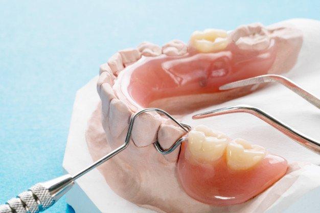 Hàm răng giả tháo lắp là gì?
