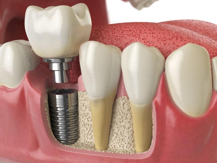 Kỹ thuật cấy ghép implant tức thì là gì. nguồn: http://procare.asia/uu-diem-va-nhuoc-diem-cua-dental-implants-cay-ghep-nha-khoa