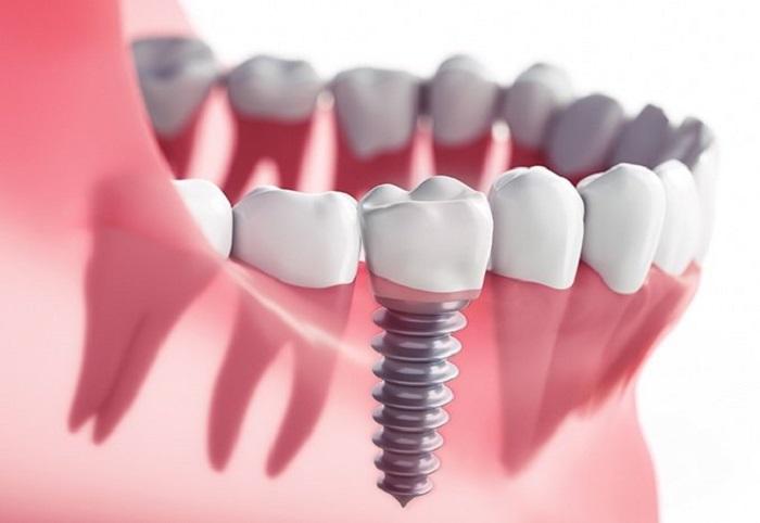 Quy trình chuẩn cấy ghép Implant an toàn, thẩm mỹ, nguồn: https://jgutbrod.com/failure-of-implants