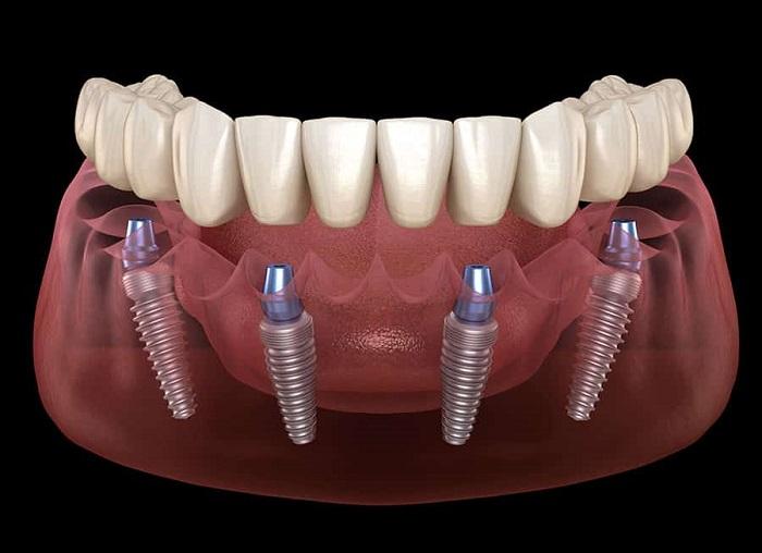 kỹ thuật cấy ghép và làm răng giả dựa trên implant nha khoa, nguồn: http://gmcuae.com/overview-implant-methods/