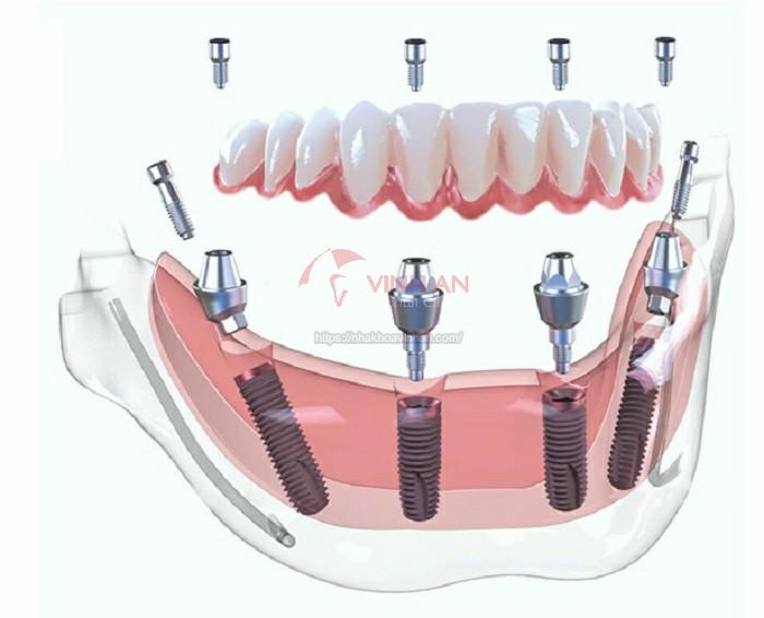 Kỹ thuật cấy ghép implant tức thì TỐT & đạt TIÊU CHUẨN