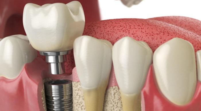 Bị mất răng cấm có nguy hiểm không?