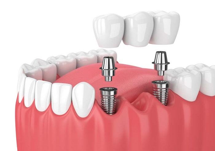 Bị mất răng cấm có nên trồng lại không?