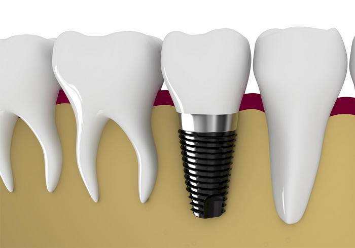 Trồng răng không đau bằng phương pháp trồng răng nào?