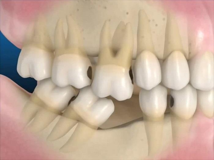 TRồng răng cấm Vinh An