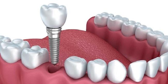 Trồng răng giả vĩnh viễn thì loại nào tốt nhất và ăn nhai tốt?