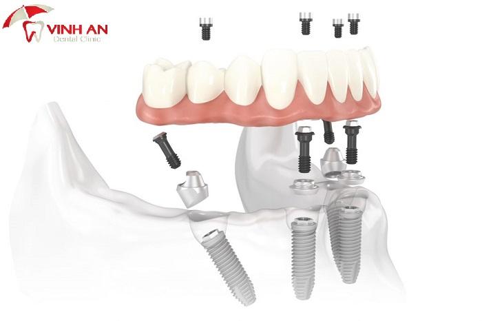Giá trồng răng hàm số 6, 7 ở hàm trên và hàm dưới
