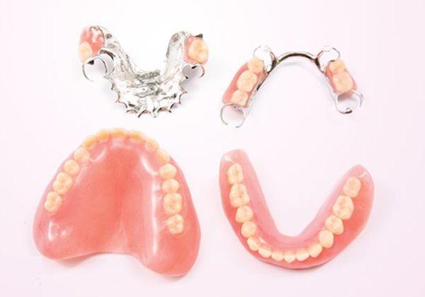 Ưu điểm và nhược điểm của răng tháo lắp