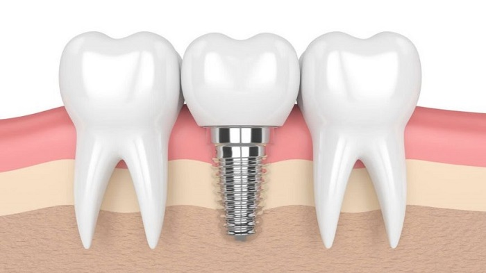 What should we note when having dental implant years after extraction? Nguồn: https://nhakhoatamducbentre.com/