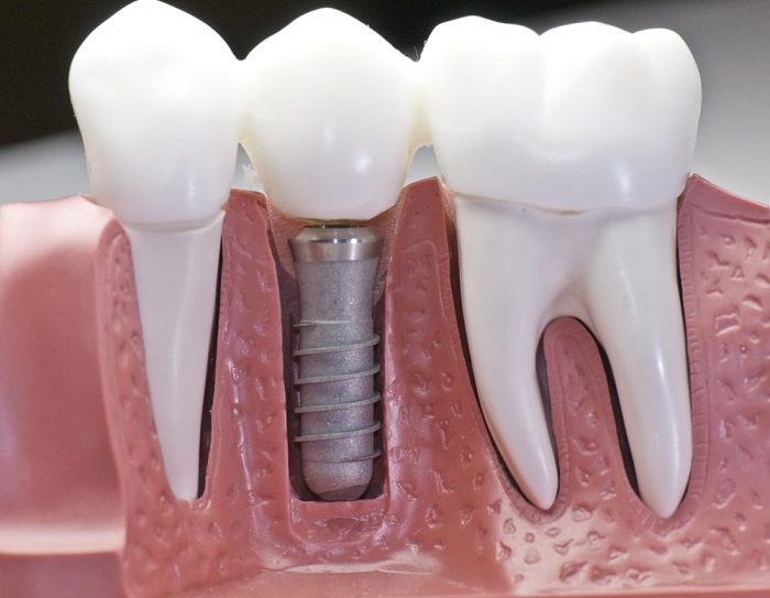 Dental implant placement immediately after tooth extraction, nguồn: https://www.yourdentistryguide.com/implants-vs-bridges/