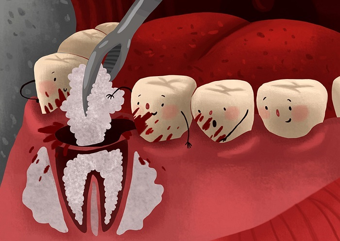 Bone graft surgery in Implant implant how