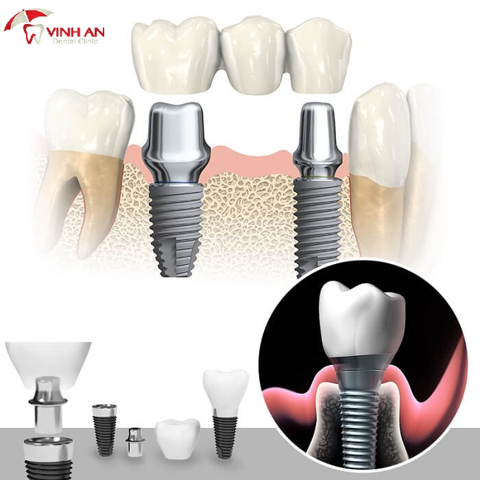 How much does the latest dental implant cost?