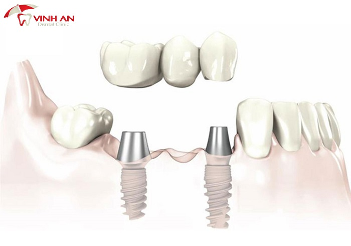 How much does dental implant cost new in 2020