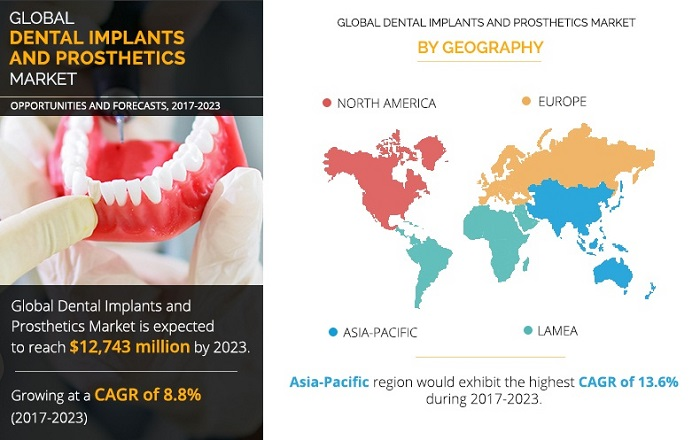Dental implant market 2020 Global: USA and Vietnam. Source: https://www.alliedmarketresearch.com/dental-implants-and-prosthetics-market