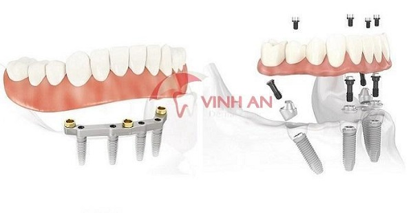 The success rate of dental implants?
