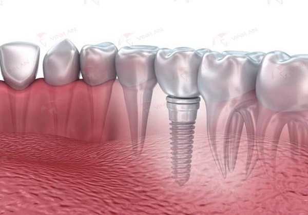 How to care teeth after Implant?