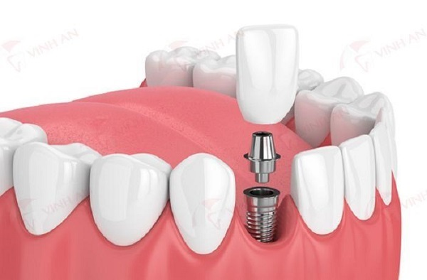 How long does a dental implant take?