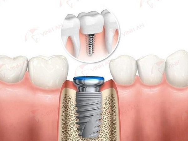 Do dental implants need to be in the hospital?