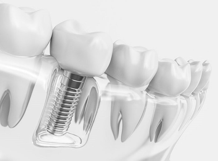 Dental implants Implants and crowns have advantages