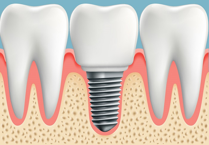 What to Expect After Dental Implant Surgery. Nguồn: https://www.boyntonbeachpremierdental.com/your-intro-to-dental-implants/