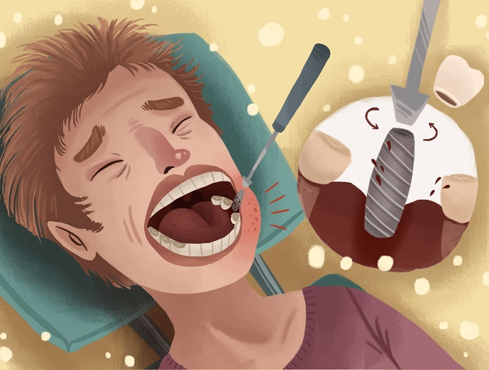 Will a dental implant procedure be painful? nguồn https://www.authoritydental.org/tooth-implant-removal