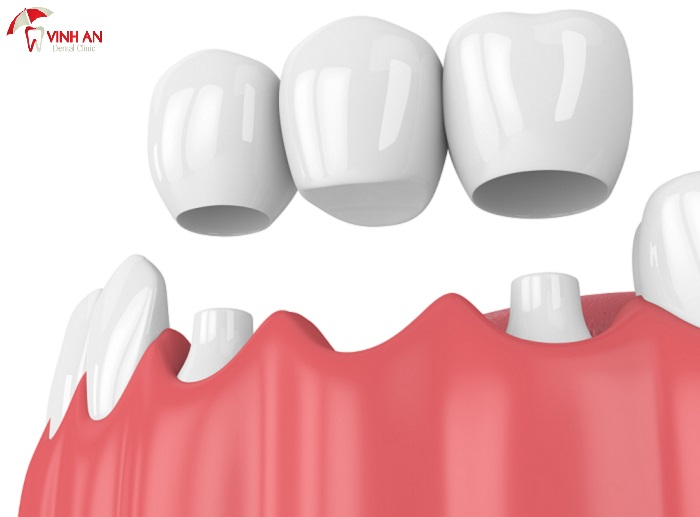 What are the uses of porcelain crown and bridge?