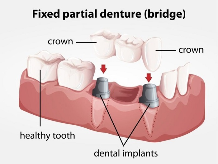 Your Dental Crown Procedure: What to Expect , nguồn: https://henritzedental.com/dental-crowns-and-caps/