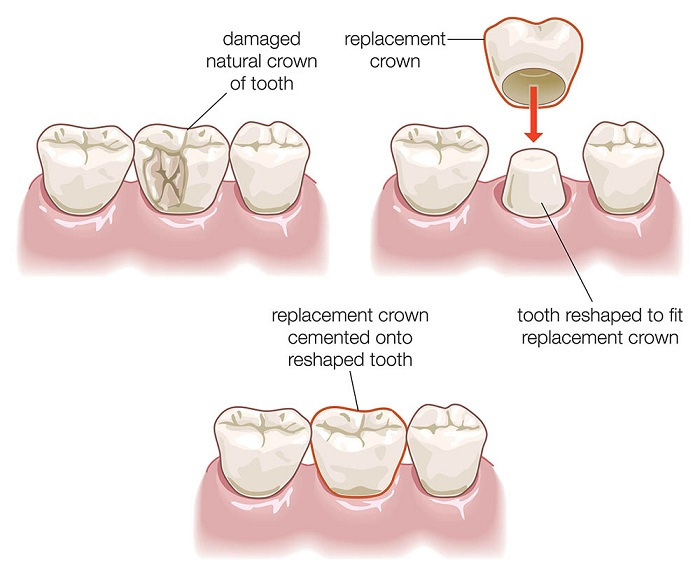 The steps of the dental crown procedure A to Z, nguồn: https://www.healthdirect.gov.au/dental-crown-procedure