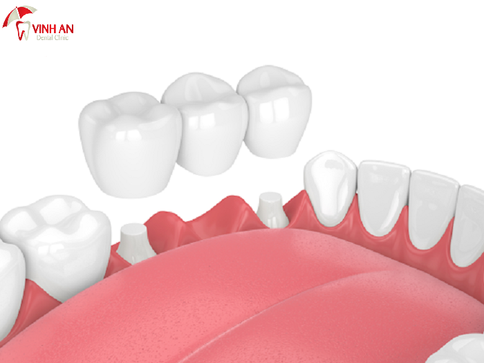 what is porcelain crowns, porcelain crown on front teeth