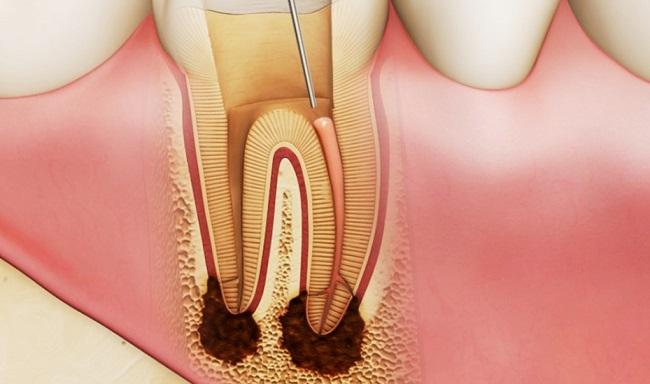 Khi nào Bọc Răng Sứ cần phải Lấy Tủy?