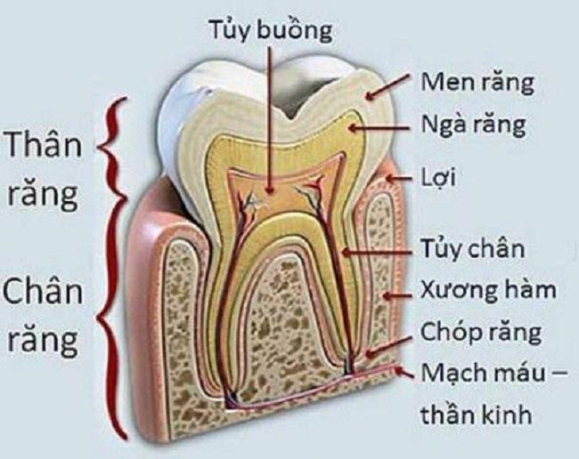 Có cần phải lấy tủy khi bọc răng sứ