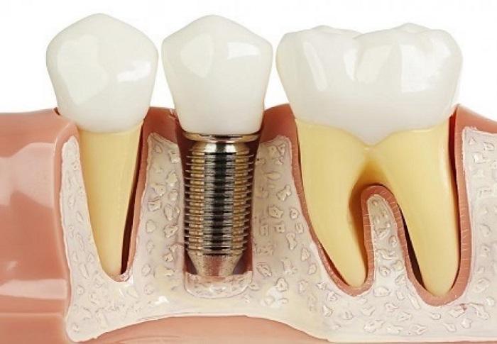Hé lộ những biến chứng sau làm răng implant
