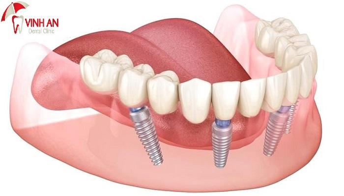 Những biến chứng khi cấy ghép implant không đúng quy trình