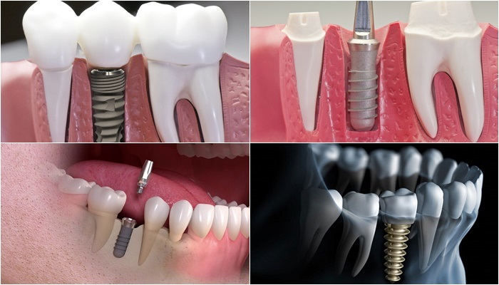 Revealing the following complications implant teeth