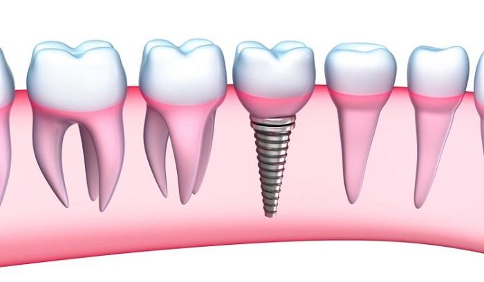 Cấy Implant có nguy hiểm không và yếu tố nào ảnh hưởng ca cấy ghép