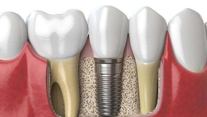 Kinh nghiệm làm răng Implant của người trong cuộc