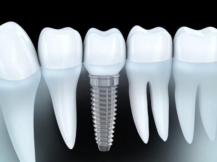 Những kinh nghiệm Trước, Trong và Sau khi cấy răng Implant
