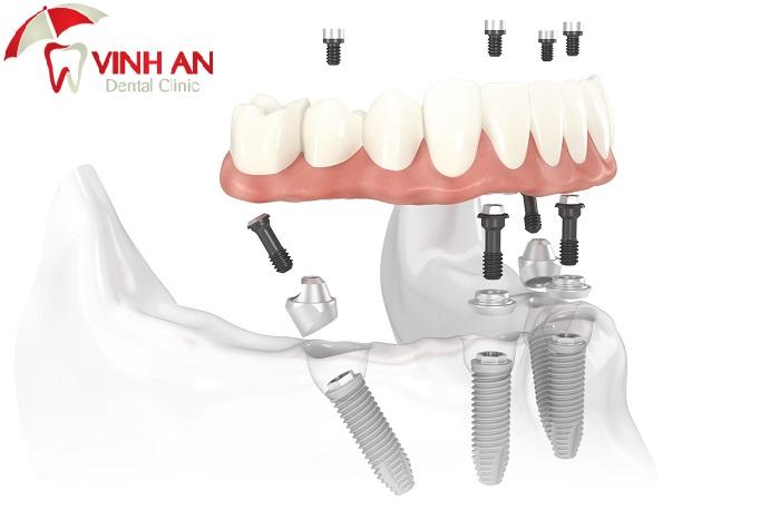 Chia sẻ kinh nghiệm làm răng Implant cho người bị mất răng