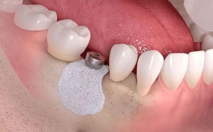 Phẫu thuật ghép xương trong trồng răng Implant thực hiện thế nào