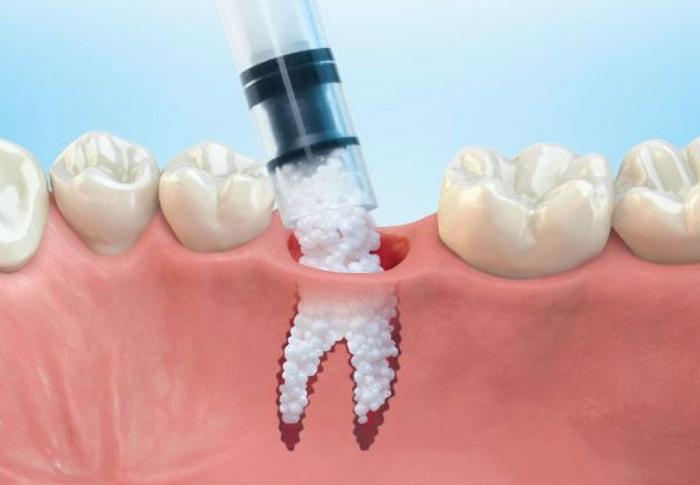Ghép xương răng Nhân Tạo và Tự Thân khác gì nhau? nguồn: http://brushdentalbr.com/bone-grafting/