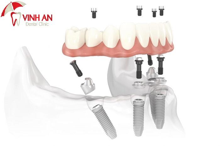 Cấy Implant có sử dụng Bảo Hiểm Y Tế không?