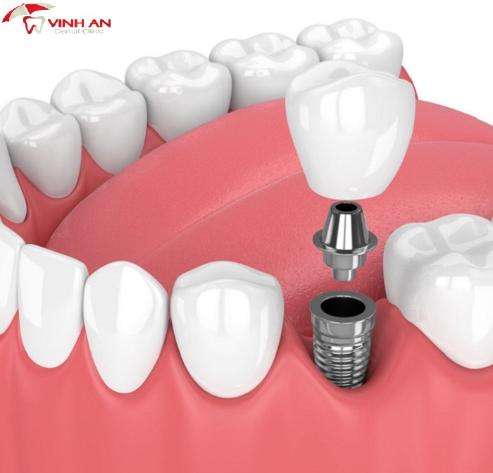 Should dental implants dentures by which method is both economical and best?