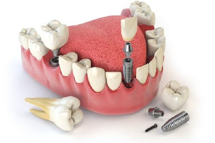 vấn đề yếu tố nào ảnh hưởng đến giá cả trồng răng giả