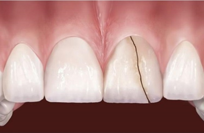 Răng sứ bị mẻ vỡ thì phải làm sao để khắc phục?