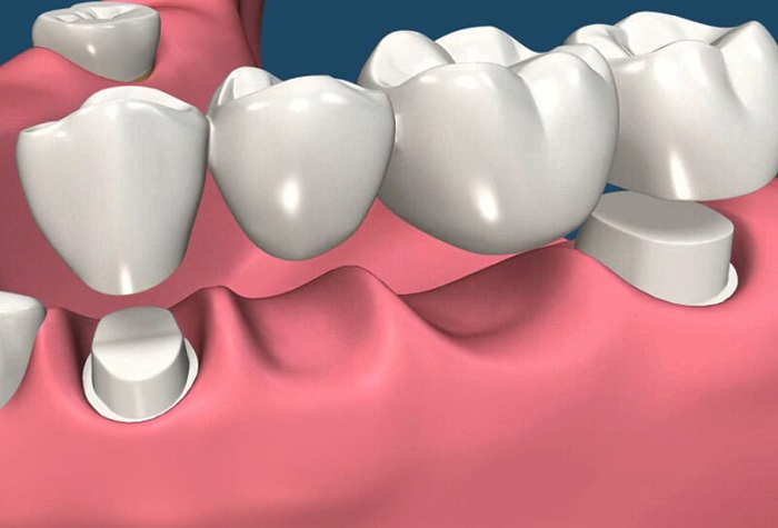 Tuổi thọ của cầu răng sứ bao lâu?