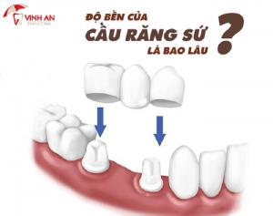 Cầu răng sứ tồn tại được bao lâu là băn khoăn của khách hàng