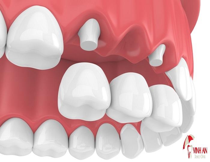 Thời điểm làm cầu răng sứ sau khi nhổ răng phụ thuộc nhiều vào tình trạng răng miệng, thời gian lành thương của.