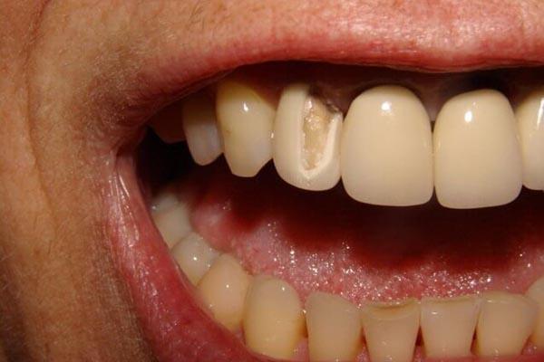 Răng sứ bị hỏng thì phải xử lý như thế nào?