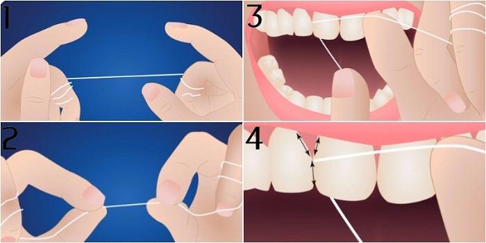 Cách dùng chỉ nha khoa cho răng hàm đúng chuẩn, hiệu quả