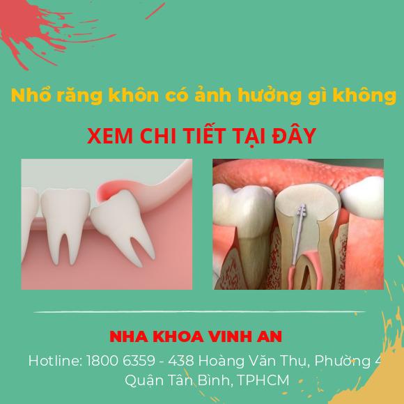 Nhổ răng khôn có ảnh hưởng gì không? Bác sĩ tư vấn